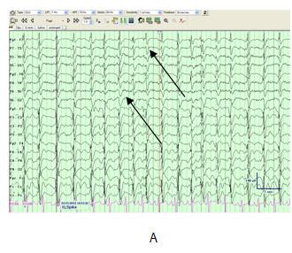 coronary artery disease research paper